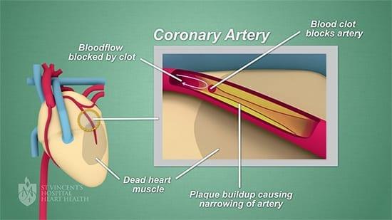 Coronary Artery Disease Types