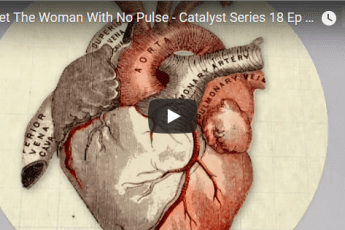 Meet The Woman With No Pulse