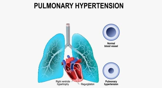 What Is Pulmonary Hypertension